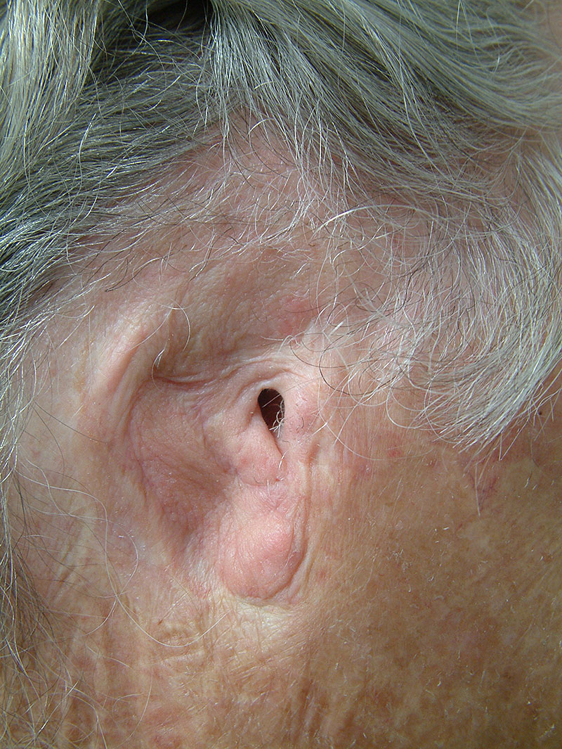 ear prothesis An auricular (ear) prosthesis artificially restores all or part of the ear which has been lost due to radical cancer surgery, amputation, burns and/or congenital defects.